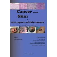Cancer of the Skin - case reports of skin tumors